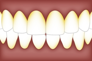 Намерете Dental Implants 40